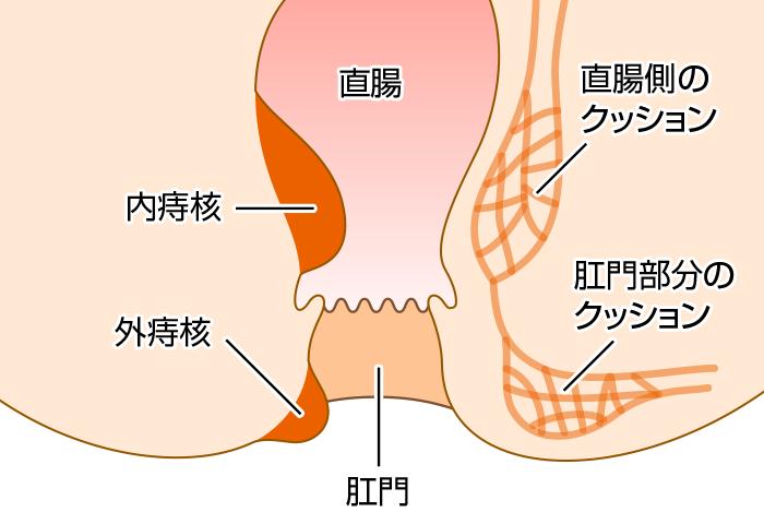 痔核(いぼ痔)の患部構造図