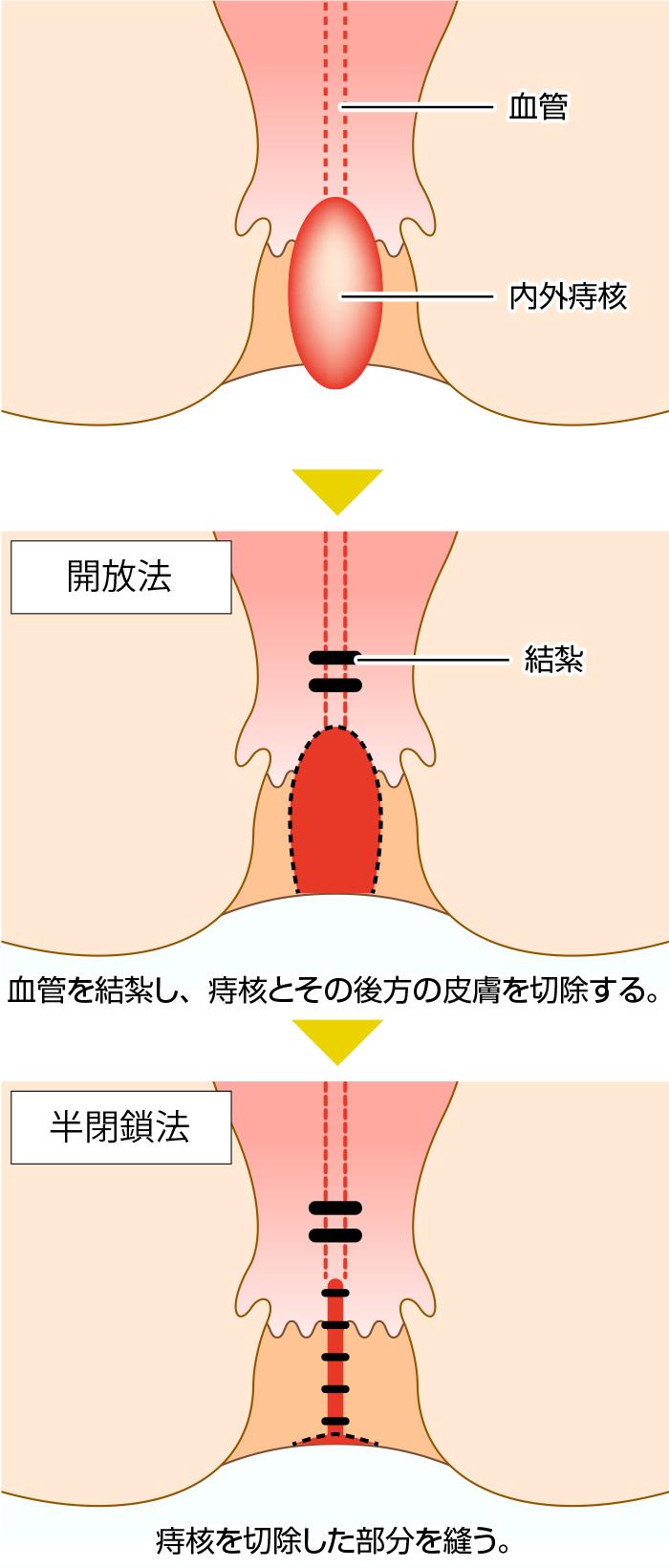 痔 治療 いぼ